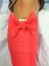 Pink Bow On The Cast