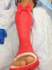Nektarios broken foot in a cast